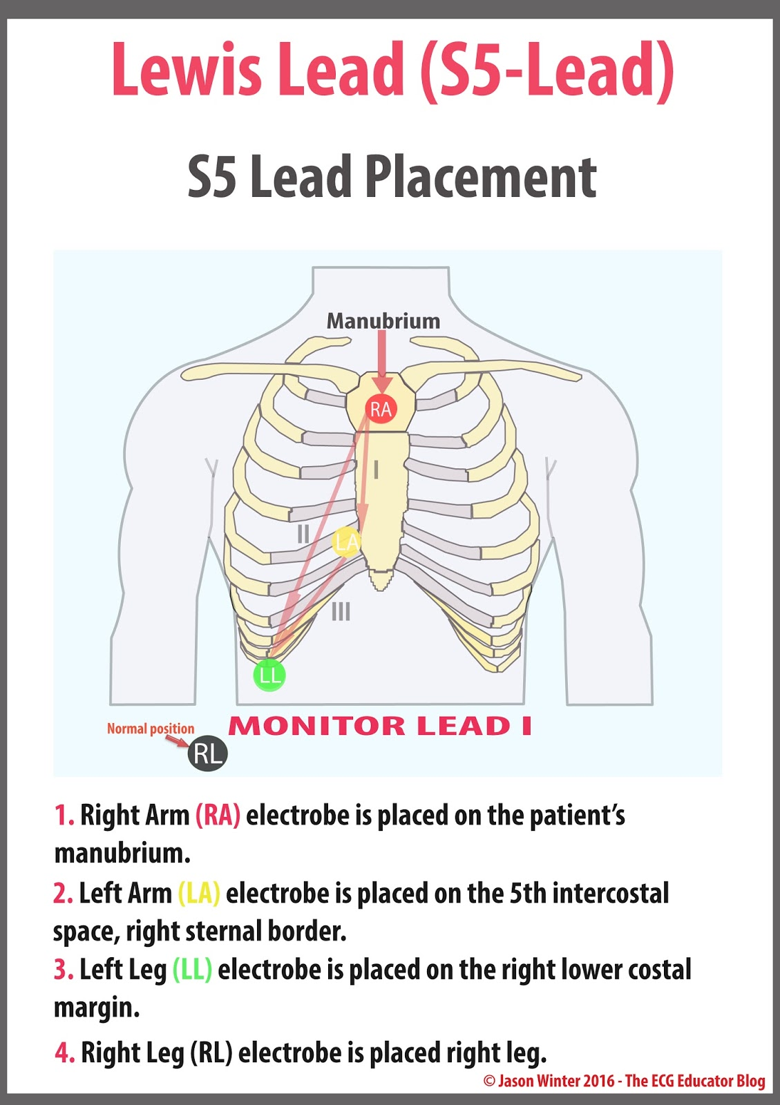 Pediatric Ekg Lead Placement Diagram Mgb Wiring Uk Pictures To Pin On Pinterest Thepinsta