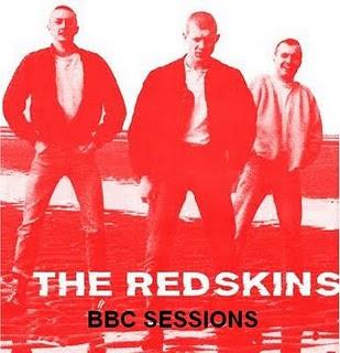http://2.bp.blogspot.com/-KjO1s2nLZmQ/TeJhXXHAHoI/AAAAAAAAFFs/l-SBx8mJSCA/s320/Redskins%2BBBC.jpg