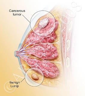 tanda kanser payudara