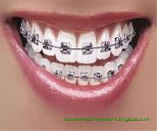 manfaat resiko bahaya menggunakan behel kawat gigi asal-asalan menurut islam dan kesehatan