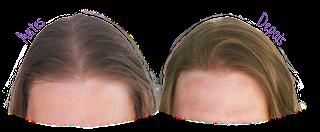 Resultado Shampoo Juba (Antes e Depois) - Resenha