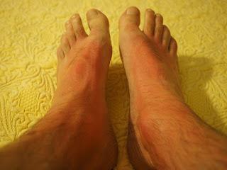 raum merah pada bagian kulit tertentu bisa jadi merupakan tanda bahwa Anda terkena penyakit kulit ini