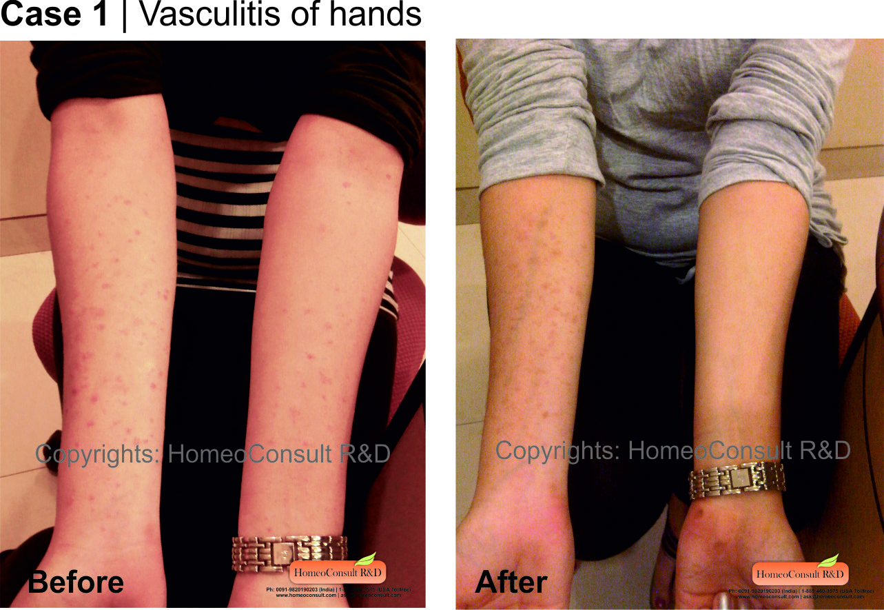 natural treatment for vasculitis disease disease