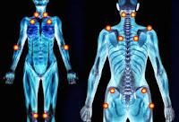 Come alleviare i sintomi della sindrome fibromialgica