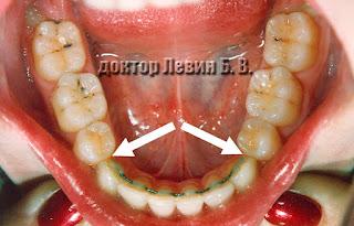 После удаления нет щелей между зубами
