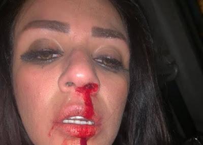 """شاهيناز عن اعتداء زوجها عليها: """"فهمني إنه راجل أعمال وطلع عاطل"""""""