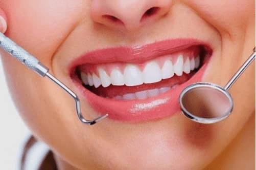 harga scaling gigi