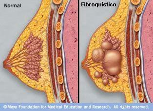los senos fibroquisticos duelen