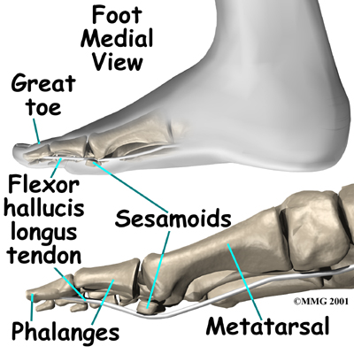 Fibular Sesamoidectomy