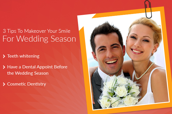 Wedding Smile Makeover Tips