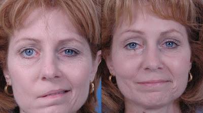 6 choses qui déclenchent une paralysie faciale ...