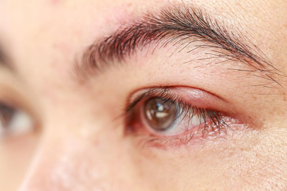 Ramuan Tradisional Untuk Mata Bintitan