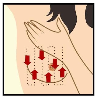Cara Mengobati Kanker Payudara Stadium 1, Cara Alami Mengatasi Penyakit Kanker Payudara, Cara Ampuh Mengobati Kanker Payudara Tanpa Operasi