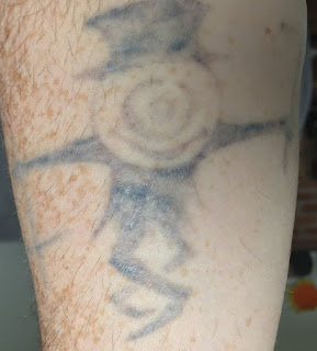 Tattoo healing from Picosure laser