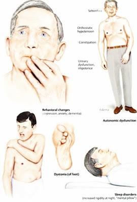 Pengobatan Herbal Parkinson Aman Dan Ampuh