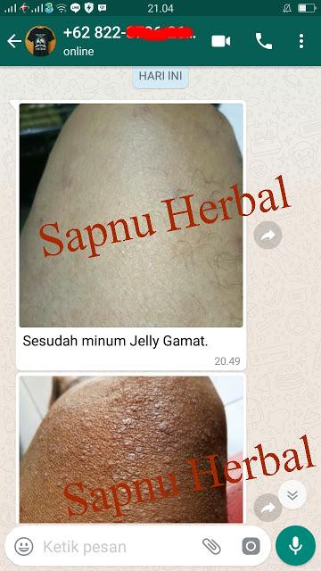 Obat Herbal Untuk Menghilangkan Vitiligo yg TERBUKTI Manjur !!