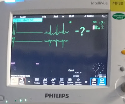 The bedside heart monitor screen shows a regular heartbeat signal suddenly flatlining. A large question mark has appeared on the top right quadrant of the screen.