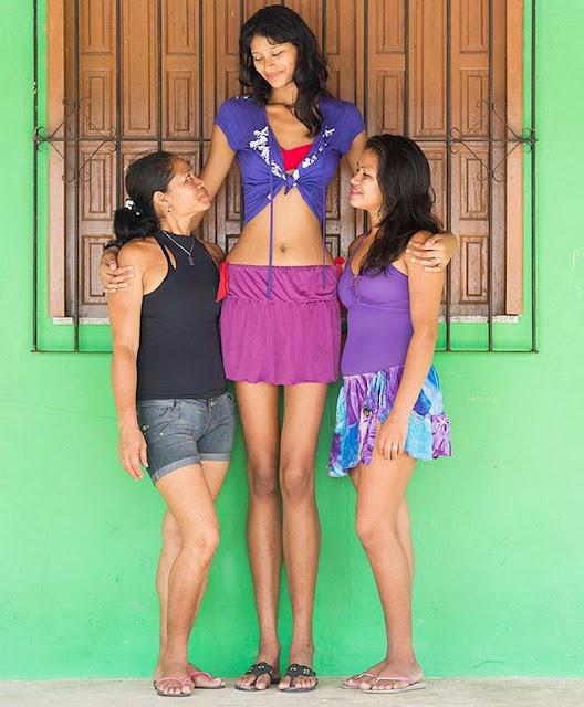 adolescente mais alta do mundo