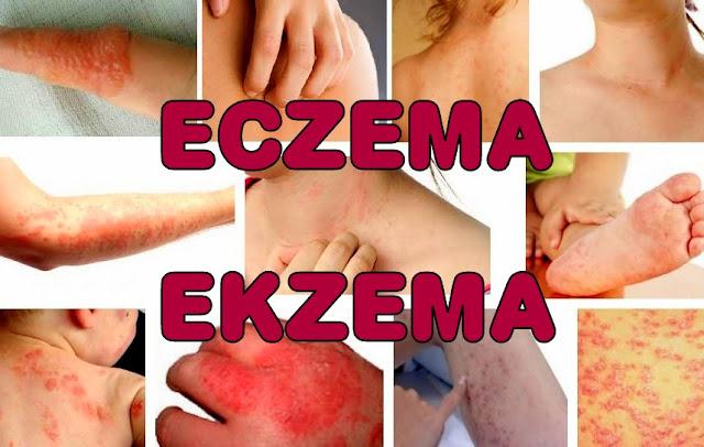Ekzema-eczema