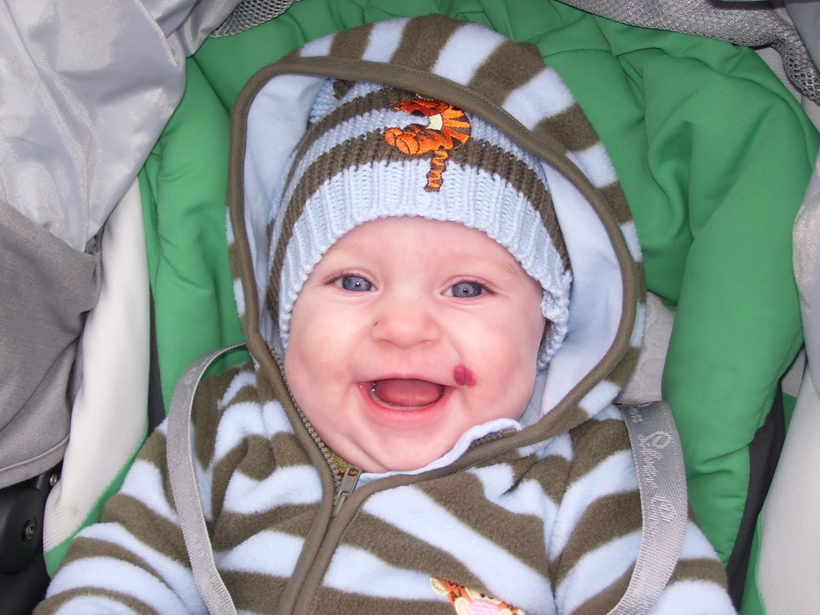 Birthmarks – Beastly or Beautiful? | Multiple Mummy