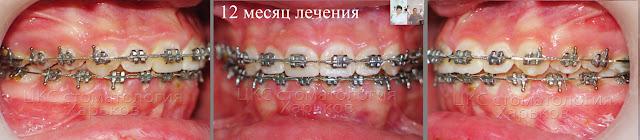 ортодонтическое лечение 12 месяц