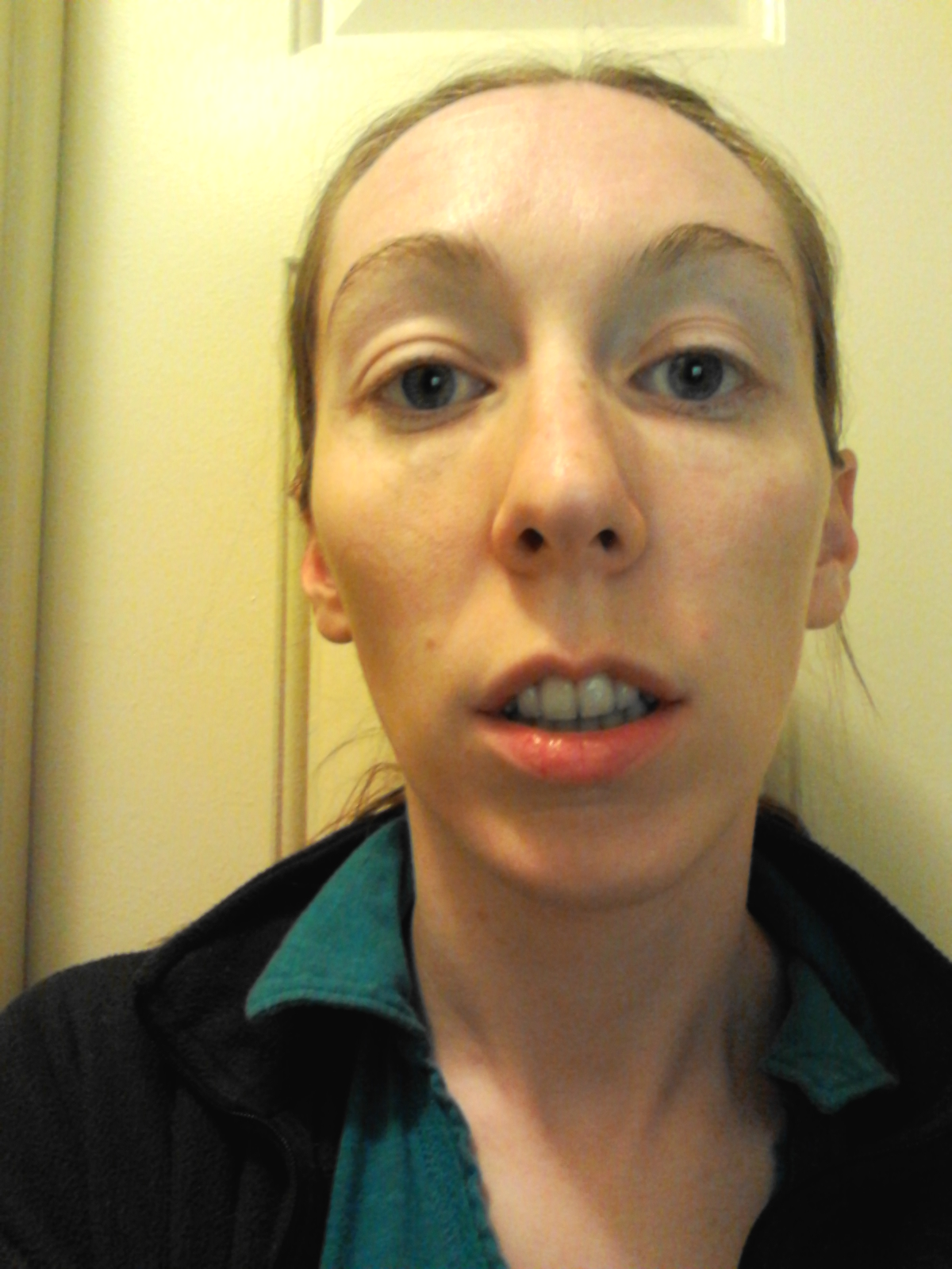 long face syndrome surgery becky s upper jaw surgery blog