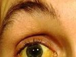 Penyebab Mata Kuning dan Cara Mengatasi Mata Kuning Dengan Cepat Dan alami