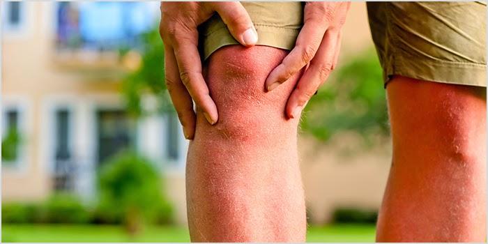 got knee pain