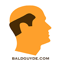 Male Pattern Baldness Stage 7 Hair Loss