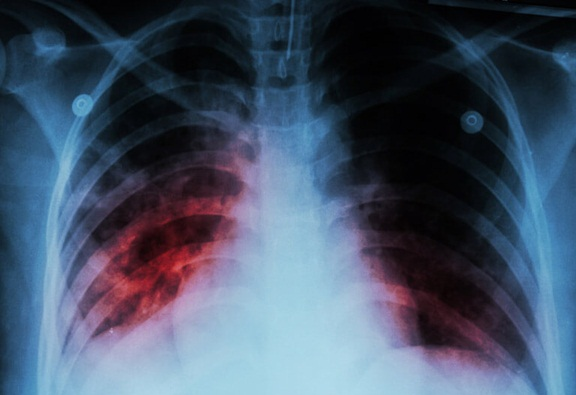 Penyakit Paru-Paru Basah dan Cara Pencegahannya