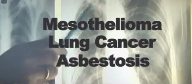 Asbestos Legal Center