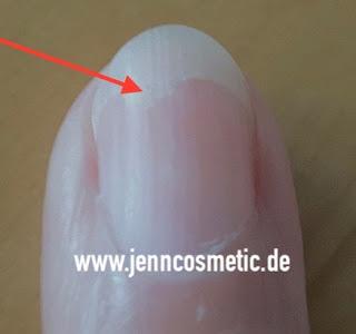 finger-nagelpilz-jenncosmetic