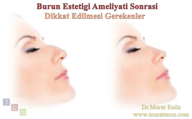 Burun estetiği ameliyatı sonrası yapılması gerekenler - Burun estetiği ameliyatı sonrası dikkat edilmesi gerekenler - Burun estetiği sonrası - Rinoplasti operasyonu sonrası yapılması gerekenler - Postoperative care after nose job in İstanbul