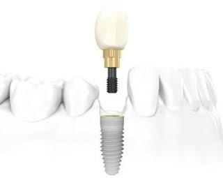 Trồng răng implant hết bao nhiêu tiền ?