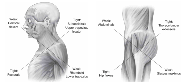Total Athletic Therapy: Step Back: Do you have Neuromuscular Control?