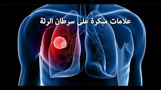 علامات مبكرة على سرطان الرئة