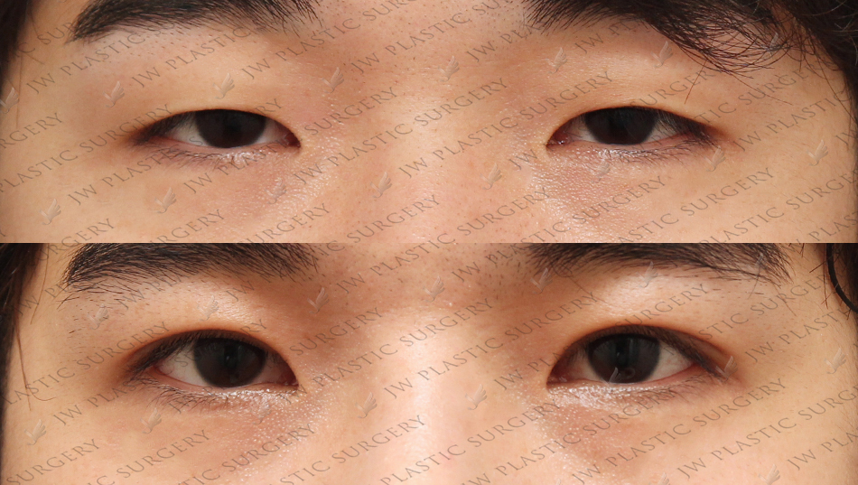 Ptosis Correction with double eyelid surgery in Seoul, Korea