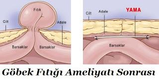 Göbek Fıtığı Ameliyatı Sonrası