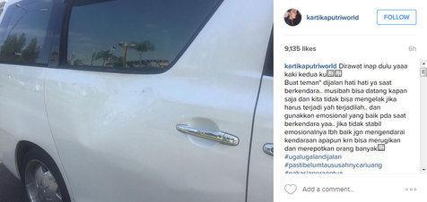 Kartika Putri dan Anak Mendagri Jadi Korban Ugal-ugalan Anak Menteri BUMN Yang Ngebut Pakai Mobil Mewah