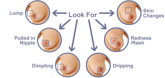 Signs Breast Cancer Info