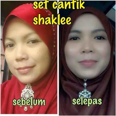 Image result for set cantik shaklee