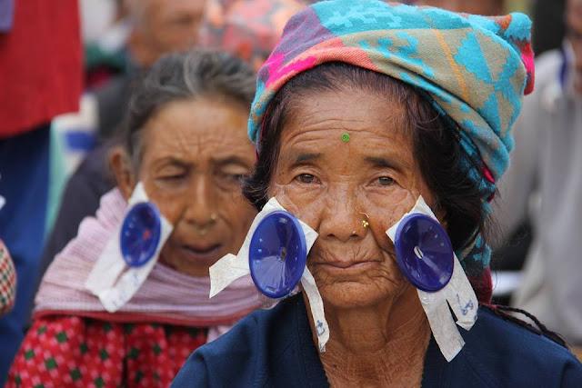 post operative cataract surgery in eyecamp Nepal