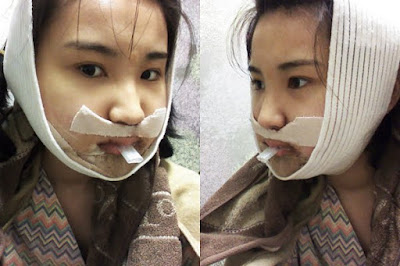 3 hari sesudah reduksi rahang persegi & operasi dua rahang Wonjin