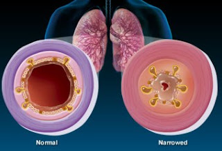 Natural Remedy for Bronchitis, a Natural Way to Cure Bronchitis