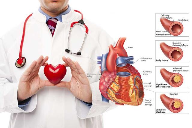 Gejala dan Penyebab Serangan Jantung Koroner