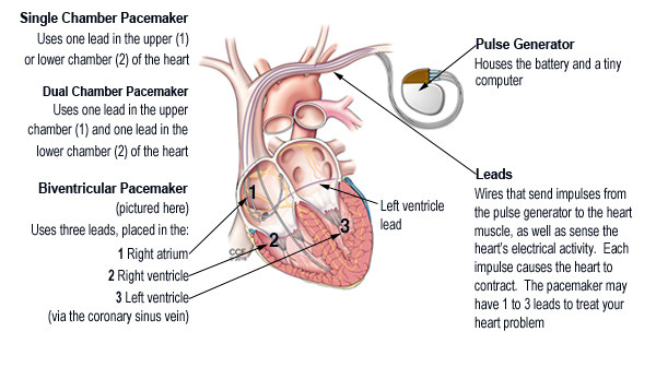 Artificial cardiac pacemaker