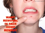 WARTS- 3 Best Way To Remove Warts From Face Naturally At Home