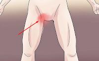Obat Gatal pada Kemaluan Wanita dan Pria di Apotek