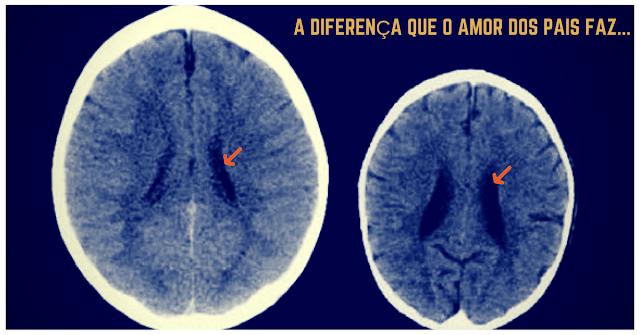 """Imagem impressionante de dois cérebros infantis: Amor demais nunca """"faz mal"""" à criança!"""