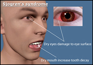 Sjögren's syndrome, herbal treatment, causes, symptoms, dry eyes, dry mouth